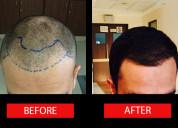 Get the best hair transplant in chennai at ahs